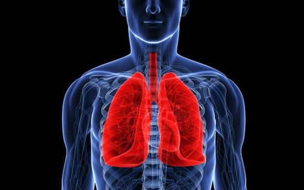 Ung thư phổi: Căn bệnh có thể mắc phải bất cứ lúc nào và nguyên nhân lại đến từ những thứ thân thuộc xung quanh bạn - Ảnh 1.