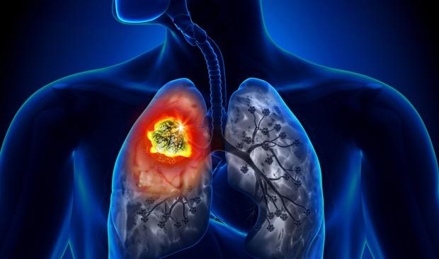 Ung thư phổi: Căn bệnh có thể mắc phải bất cứ lúc nào và nguyên nhân lại đến từ những thứ thân thuộc xung quanh bạn - Ảnh 2.