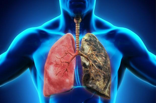 Ung thư phổi: Căn bệnh có thể mắc phải bất cứ lúc nào và nguyên nhân lại đến từ những thứ thân thuộc xung quanh bạn - Ảnh 6.