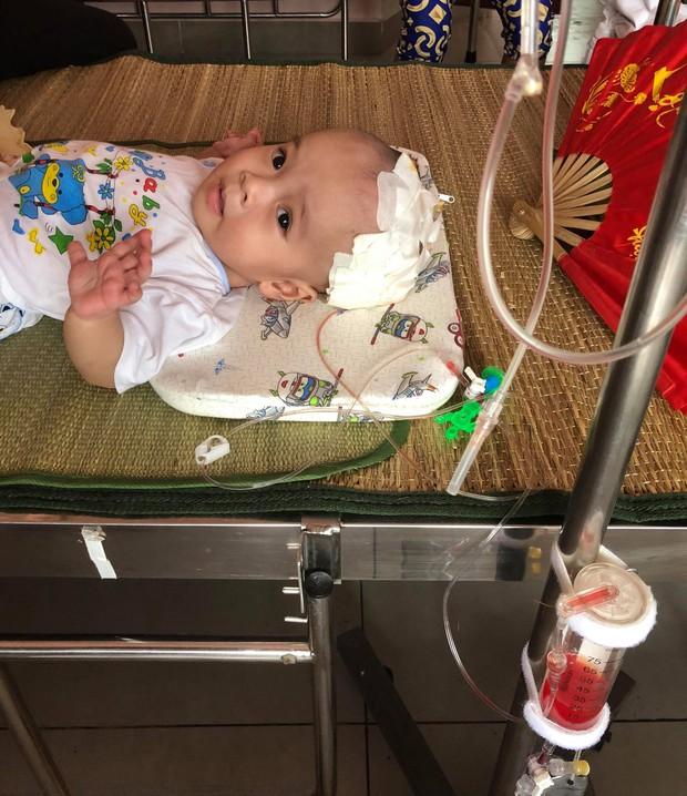 Tiếng khóc thương tâm của bé trai 10 tháng tuổi mắc bệnh não úng thủy ở Nghệ An - Ảnh 2.