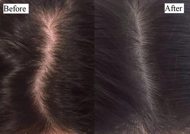 Cư dân mạng kháo nhau dùng tinh dầu bưởi tóc từ mỏng thành dày, nhưng liệu nó có thực sự thần thánh đến vậy? - Ảnh 4.