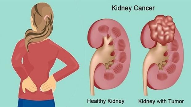 Hậu quả khôn lường khi nhịn ăn để giảm cân - Ảnh 9.