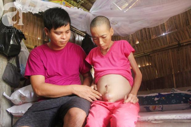 Người đàn ông trẻ chấp nhận điều tiếng, một tay chăm sóc vợ bệnh tật của người khác suốt 2 năm trời - Ảnh 2.