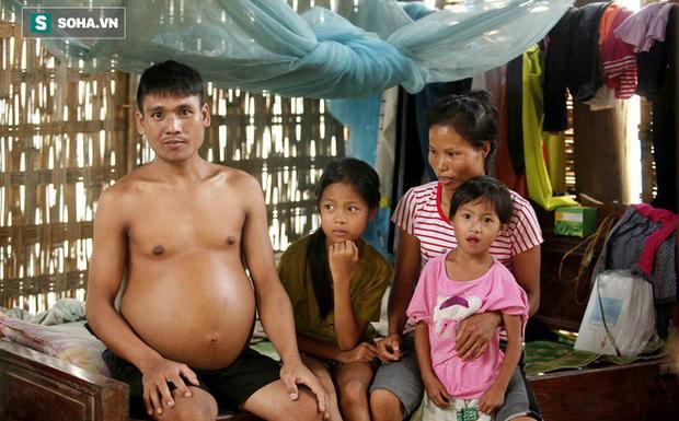 Nhà nghèo, cơm không đủ ăn, chồng bạo bệnh, con suy dinh dưỡng nặng - Ảnh 1.
