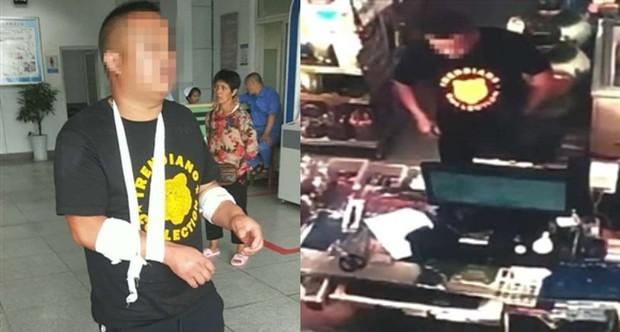 Thanh niên Trung Quốc tự cứa tay vờ bị cướp để khỏi phải mua ô tô 2 tỷ 3 tặng bạn gái như đã hứa - Ảnh 2.