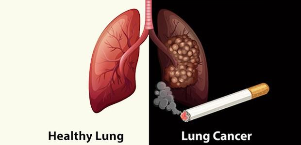 Có 20.000 người Việt Nam mắc ung thư phổi mỗi năm, nên làm gì để phát hiện sớm căn bệnh này? - Ảnh 1.