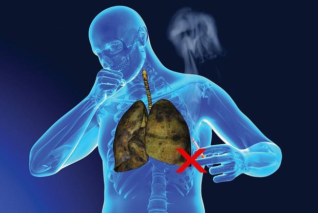Có 20.000 người Việt Nam mắc ung thư phổi mỗi năm, nên làm gì để phát hiện sớm căn bệnh này? - Ảnh 3.