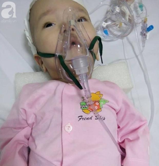 Cha nghèo tha hương cứu con gái 14 tháng tuổi nằm viện từ lúc lọt lòng vì căn bệnh quái ác - Ảnh 2.