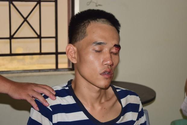 Khởi tố nam thanh niên giết người trong đám tang cha ruột - Ảnh 1.