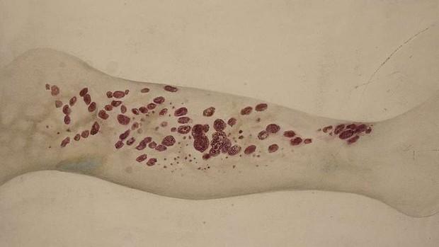 Căn bệnh bí ẩn từng giết hàng loạt hải tặc vào thế kỷ 18 đang dần xuất hiện - Ảnh 1.