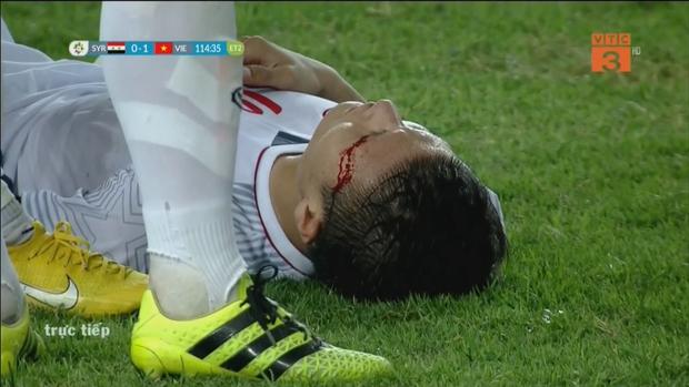 Xót xa hình ảnh Quang Hải đổ máu trong trận thắng Olympic Syria - Ảnh 2.