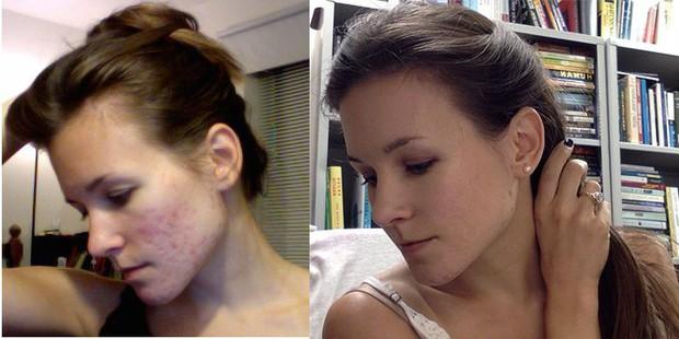 Cô gái người Mỹ kiên trì theo đuổi chế độ detox giúp đánh bay mụn chi chít trên khuôn mặt sau 1 năm - Ảnh 1.