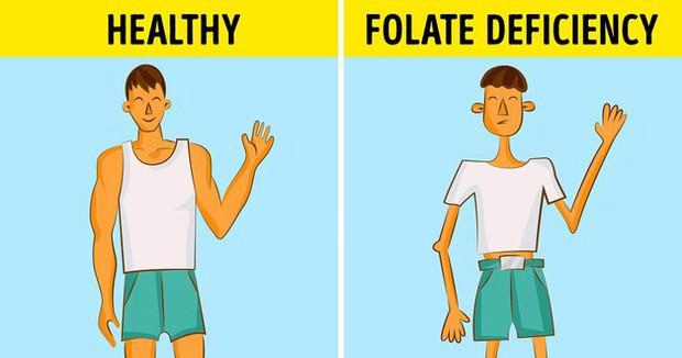 Có những dấu hiệu này, bạn cần bổ sung axit folic ngay - Ảnh 5.