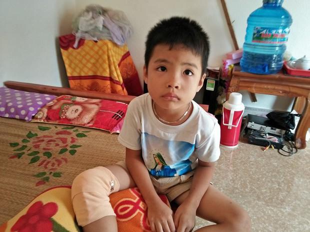 Ánh mắt cầu cứu của hai đứa trẻ cùng mắc phải căn bệnh đông máu, không tiền chữa trị ở Nghệ An - Ảnh 3.