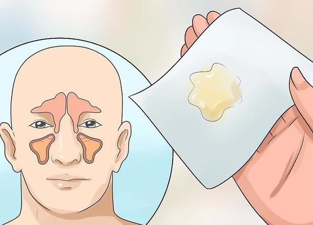 Sáng ngủ dậy gặp phải những dấu hiệu này thì nên chủ động đi kiểm tra sức khỏe ngay - Ảnh 4.