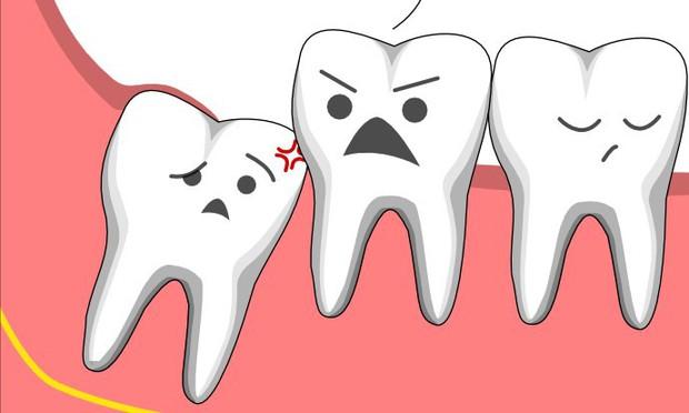 Ai cũng phát điên vì răng khôn và bạn nhất định phải biết những điều này về chúng - Ảnh 5.