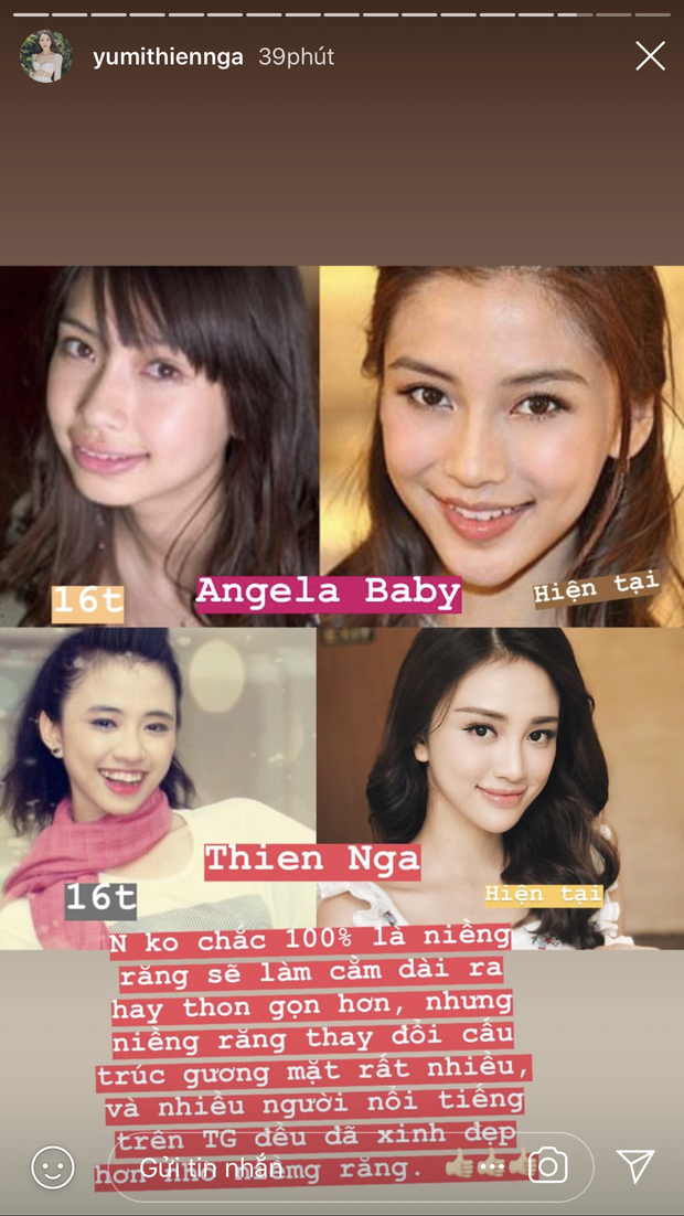 Thiên Nga tự so sánh mình với Angela Baby khi bị truy sát với câu hỏi có phẫu thuật thẩm mỹ hay không? - Ảnh 4.