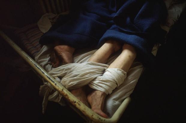 Những tấm hình ám ảnh trong bệnh viện tâm thần 50 năm trước - Ảnh 1.