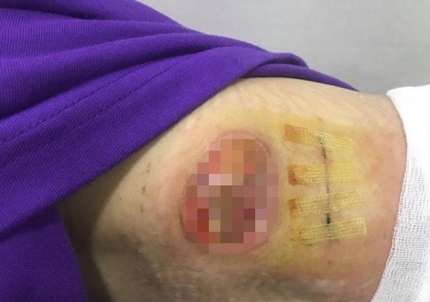 Sau vụ phẫu thuật lở loét kinh dị, minh tinh Mỹ nữ tái sinh gây sốt vì quá đẹp nhưng lộ cả ngấn ngực ở sự kiện - Ảnh 15.