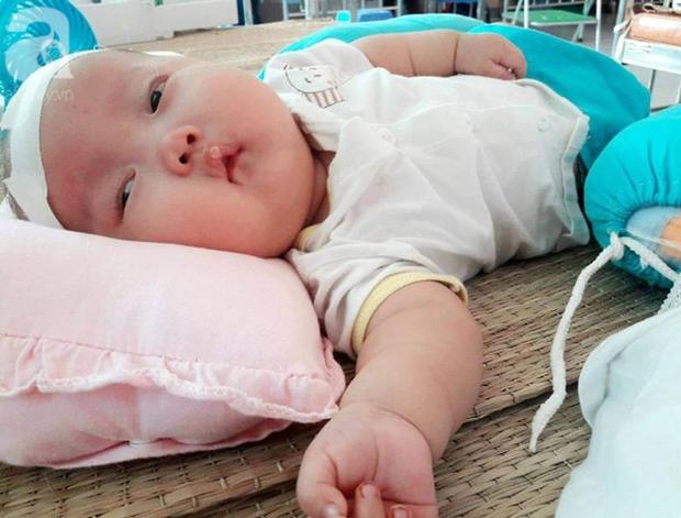 Mẹ trẻ đau đớn cầu xin mạnh thường quân cứu con trai bị não úng thủy từ lúc 2 tháng tuổi - Ảnh 5.
