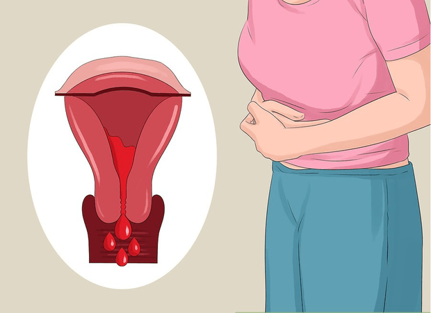Lạc nội mạc tử cung và 6 dấu hiệu điển hình của căn bệnh này mà con gái không nên chủ quan bỏ qua - Ảnh 1.