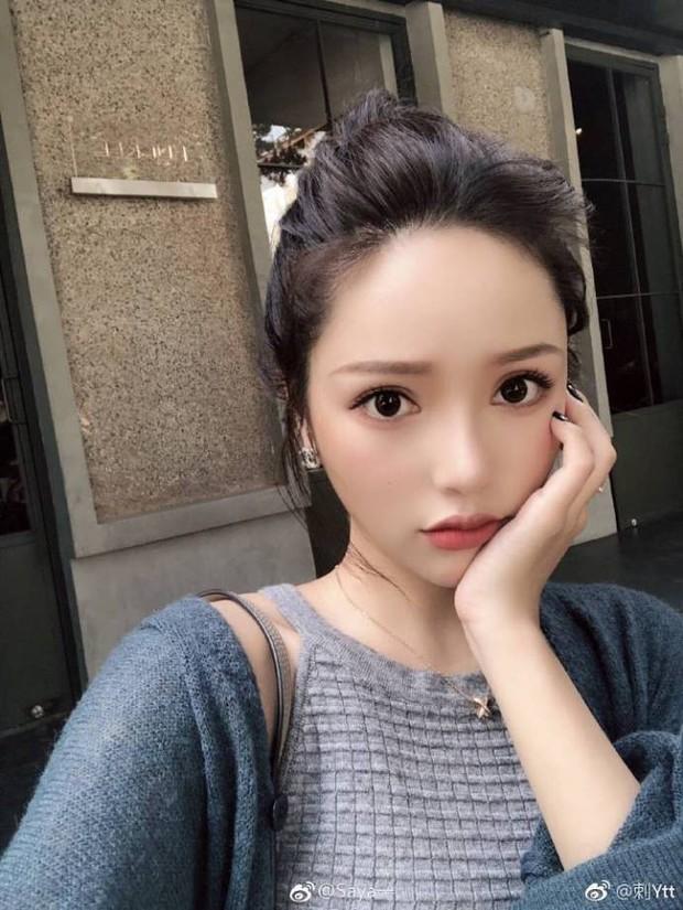 Chó cưng bulldog cắn người phụ nữ có thai, beauty blogger nổi tiếng Trung Quốc không xin lỗi còn đánh luôn cả nạn nhân - Ảnh 3.