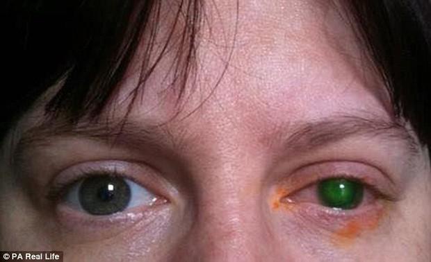 Người phụ nữ 39 tuổi suýt bị mù mắt chỉ vì đi bơi quên bỏ kính áp tròng ra khỏi mắt - Ảnh 2.