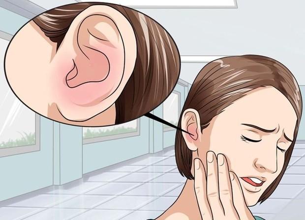 4 dấu hiệu bất thường ở đôi tai cảnh báo hàng loạt vấn đề sức khỏe tai hại mà bạn đang gặp phải - Ảnh 2.