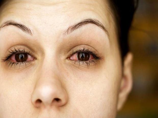 7 thói quen xấu gây ảnh hưởng nghiêm trọng tới thị lực mà nhiều người hay mắc phải - Ảnh 2.
