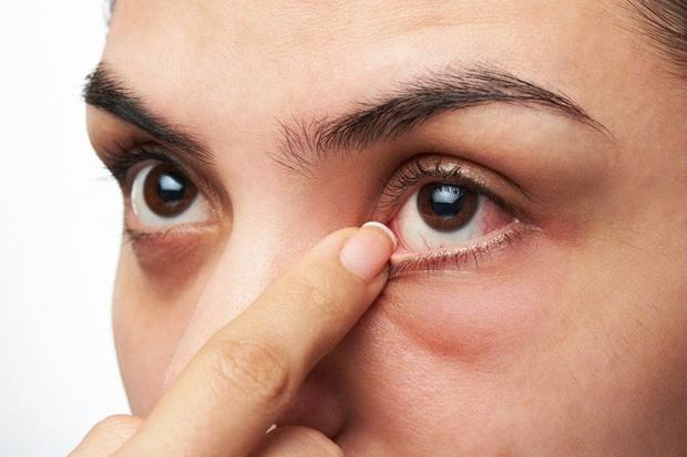 Ngày càng nhiều người bị co giật mí mắt - đó là dấu hiệu nghiêm trọng? Hãy để khoa học giải đáp cho bạn - Ảnh 3.