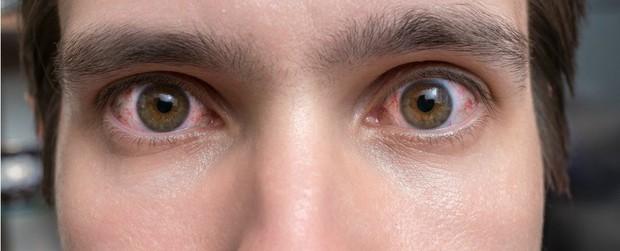 Ngày càng nhiều người bị co giật mí mắt - đó là dấu hiệu nghiêm trọng? Hãy để khoa học giải đáp cho bạn - Ảnh 2.