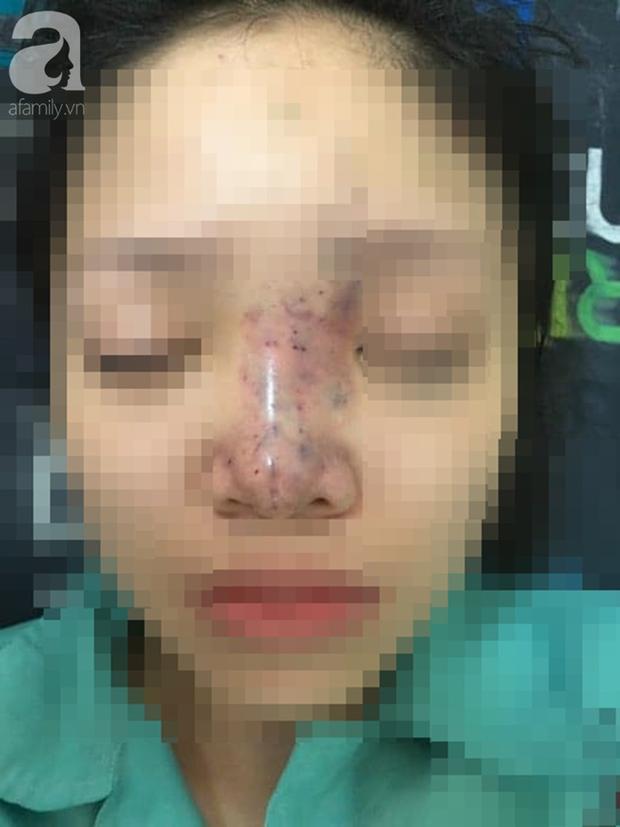 Tiêm filler nâng mũi, nữ sinh viên 20 tuổi ở Sài Gòn đối diện nguy cơ hoại tử da, mù mắt vĩnh viễn - Ảnh 1.