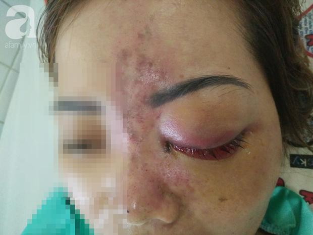 Tiêm filler nâng mũi, nữ sinh viên 20 tuổi ở Sài Gòn đối diện nguy cơ hoại tử da, mù mắt vĩnh viễn - Ảnh 4.
