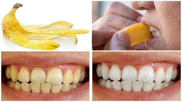 Cách làm trắng răng hiệu quả với vỏ chuối - Ảnh 3.