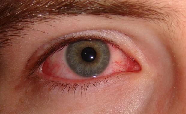 Mắt đột nhiên đỏ ngầu có thể là do 4 nguyên nhân sức khỏe mà bạn không ngờ đến - Ảnh 1.