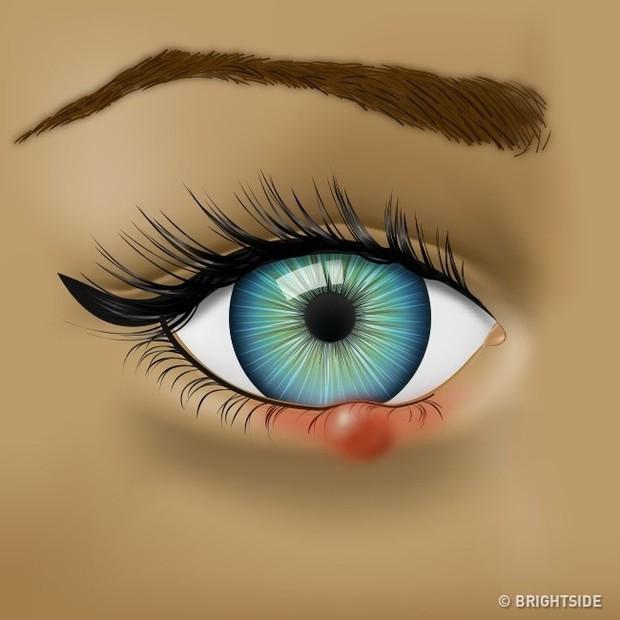 Mắt đột nhiên đỏ ngầu có thể là do 4 nguyên nhân sức khỏe mà bạn không ngờ đến - Ảnh 3.