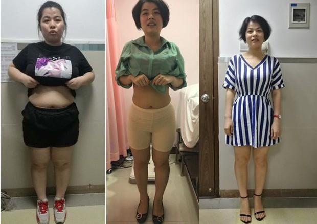Cho rằng bác sĩ lừa mình vì không có cách giảm cân như thế nhưng cô gái vẫn làm theo và giảm tới 17,4kg - Ảnh 1.