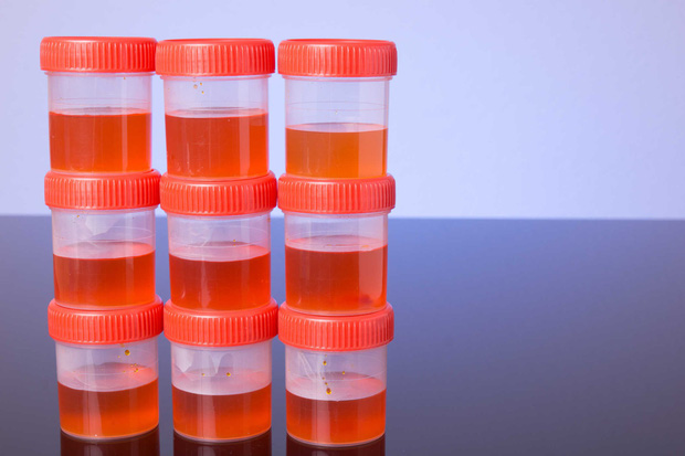 Những dấu hiệu tưởng vô hại nhưng hóa ra lại ngầm cảnh báo bệnh ung thư bàng quang - Ảnh 5.