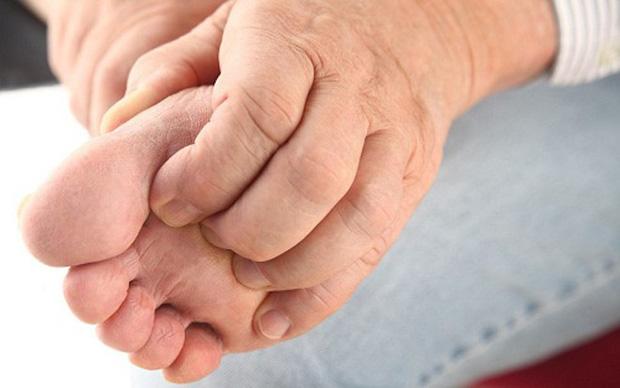 Bệnh gút ai cũng có thể mắc nhưng hiếm người hiểu rõ nguyên nhân và triệu chứng - Ảnh 6.