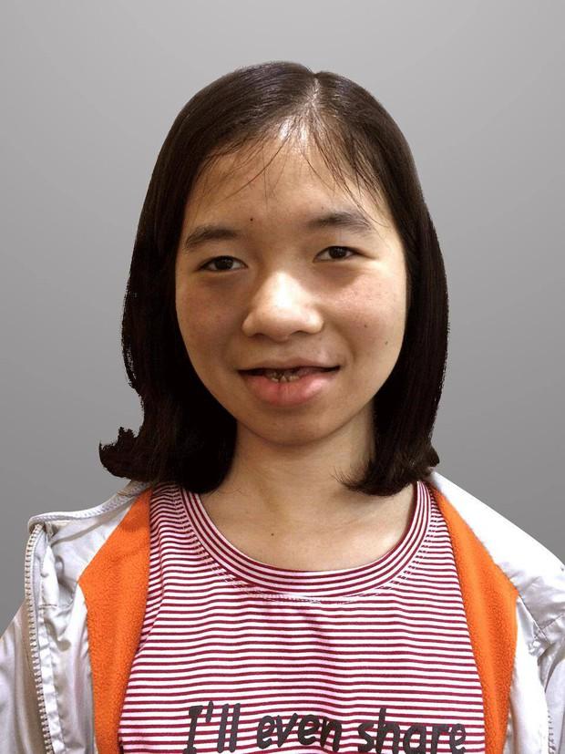 Cô gái bị gắn mác ma cà rồng, suốt 18 năm không dám soi gương và hành trình lột xác khiến nhiều người ngỡ ngàng - Ảnh 2.
