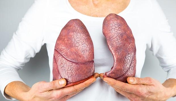 Ung thư phổi đang ngày càng trẻ hoá: đừng để đến lúc phát hiện thì đã quá muộn - Ảnh 5.