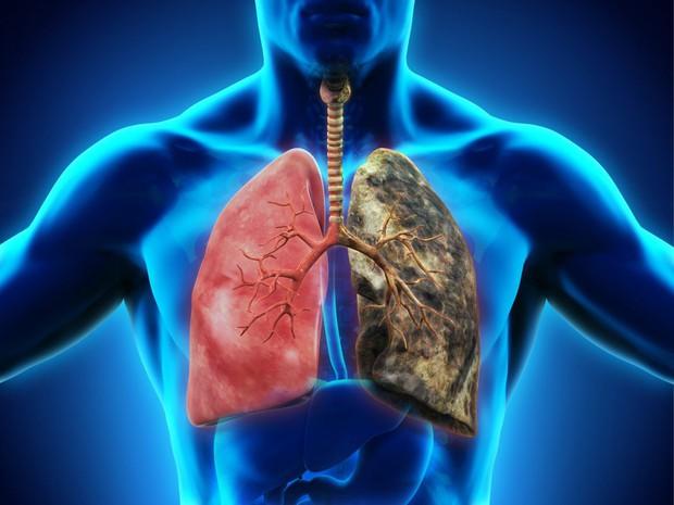 Ung thư phổi đang ngày càng trẻ hoá: đừng để đến lúc phát hiện thì đã quá muộn - Ảnh 1.