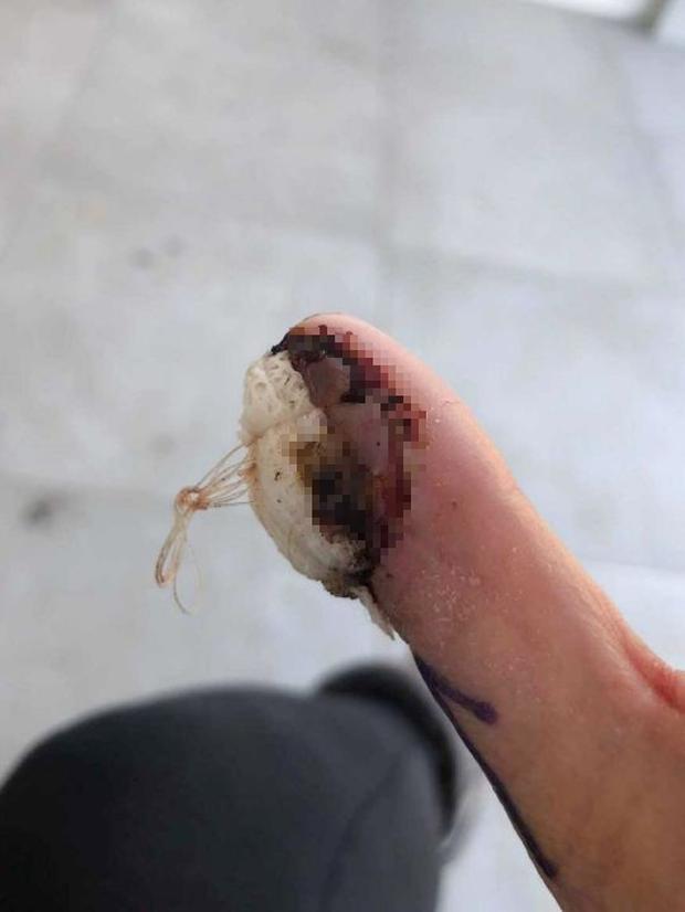 Cắn móng tay suốt 4 năm liền, cô gái trẻ gặp phải chấn thương nghiêm trọng tới mức phải cắt bỏ ngón cái - Ảnh 3.