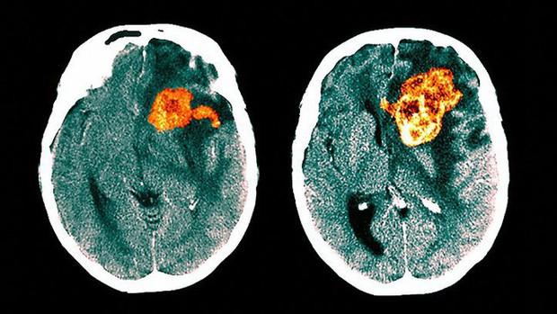 Tưởng đau đầu do thiếu sắt, 3 tháng sau cô gái qua đời vì bị ung thư não nguy hiểm: Đừng bỏ qua những triệu chứng dễ nhầm lẫn này - Ảnh 3.