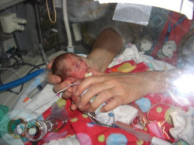 Bất chấp quy tắc, nữ y tá đặt bé sơ sinh hấp hối nằm cạnh chị sinh đôi, tạo nên kết quả chấn động - Ảnh 1.