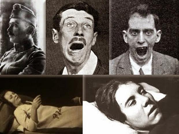 Hơn 5 triệu người đóng băng trong khoảng 11 năm: Chứng bệnh ngủ kỳ lạ từng gieo rắc cơn ác mộng trên thế giới - Ảnh 3.