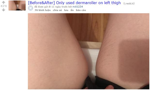 Nhờ loại dụng cụ đơn giản, những vết rạn da của cô gái này đã biến mất chỉ sau 2 tuần sử dụng - Ảnh 1.
