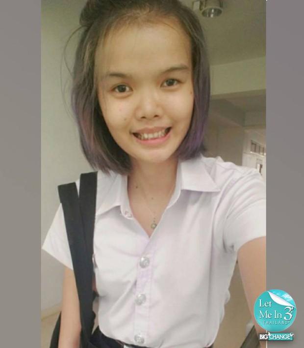 Phẫu thuật thẩm mỹ giống búp bê Barbie, nữ sinh Thái Lan bị cư dân mạng chỉ trích vì gương mặt quái dị - Ảnh 2.