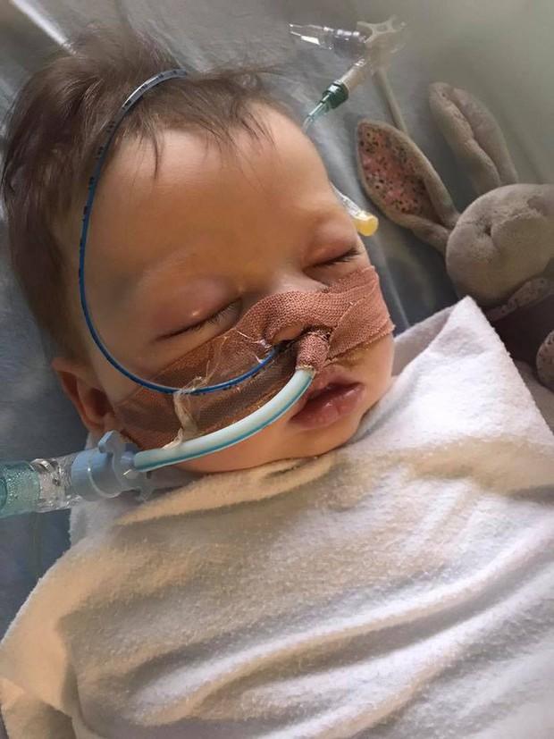 Bé gái 5 tháng tuổi đột nhiên ngừng thở vì căn bệnh rất phổ biến ở trẻ vào mùa đông - Ảnh 1.