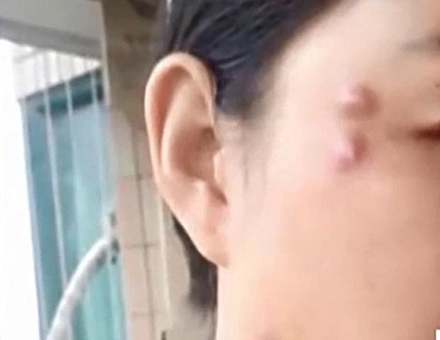 Ham phẫu thuật thẩm mỹ giá rẻ, người phụ nữ nhận nguyên vài cục u chạy quanh mặt - Ảnh 2.